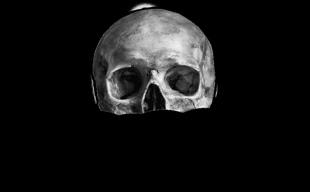 skullTop